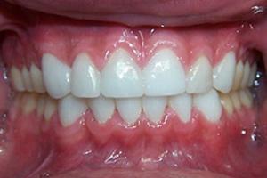 Dental Restorations After