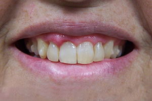 Gingival Contouring After