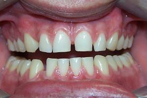 Dental Restorations Before
