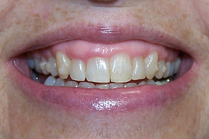 Gingival Contouring Before
